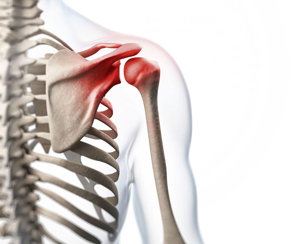 Skelett mit visualisierter Entzündung in Schulter