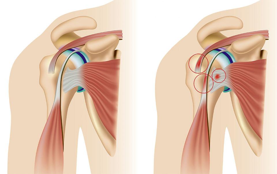 Darstellung Schulter